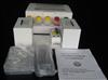 人优球蛋白(EL)ELISA试剂盒